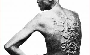 Slave showing scars on back from whippings